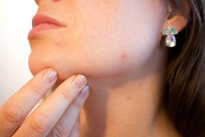 huidproblemen van allergie